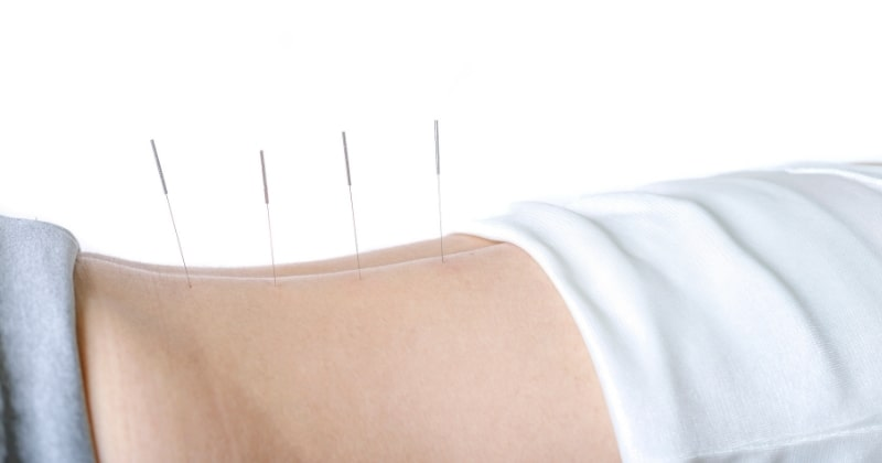 4 akupunkturnålar som sitter på en persons rygg.